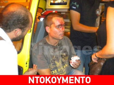 Greek local councillor Giorgos Tsimpoukakis, wounded by nazis; picture Zougla.gr