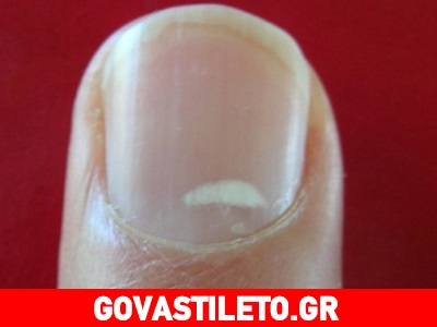 Μύθος ότι οι λευκές κηλίδες στα νύχια