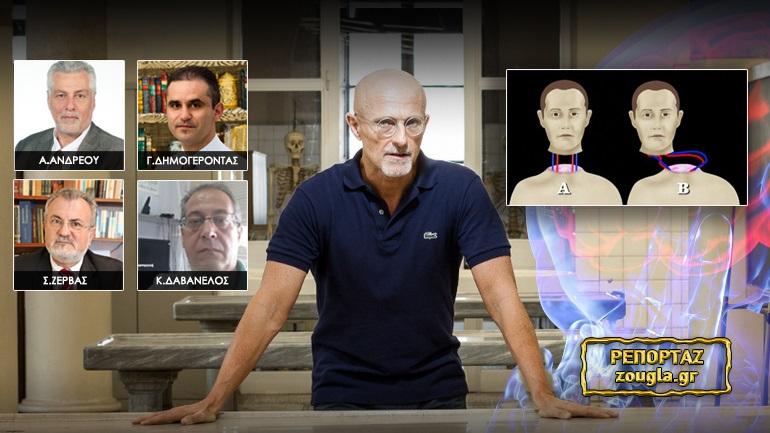 Σχεδιάζουν μεταμόσχευση ανθρώπινης κεφαλής