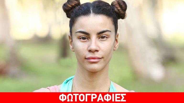 Ειρήνη Παπαδοπούλου: Σοκάρουν τα σημάδια που έχει στα πόδια της μετά το Survivor