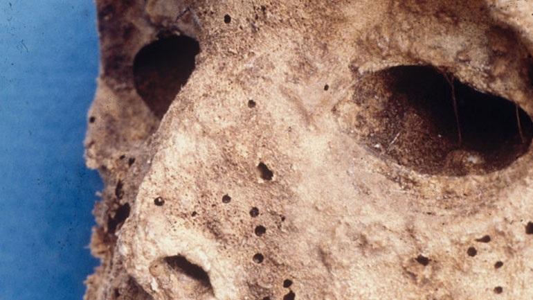 Επιστήμονες ανακάλυψαν ηπατίτιδα Β στη μούμια ενός παιδιού από τον 16ο αιώνα