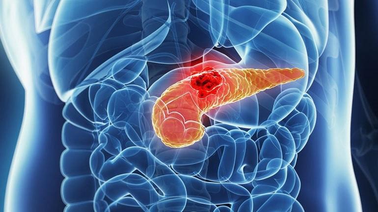 Καρκίνος παγκρέατος: Τι πρέπει να ξέρετε