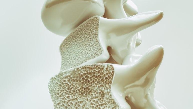 Οι πρωτεΐνες δεν προκαλούν οστεοπόρωση