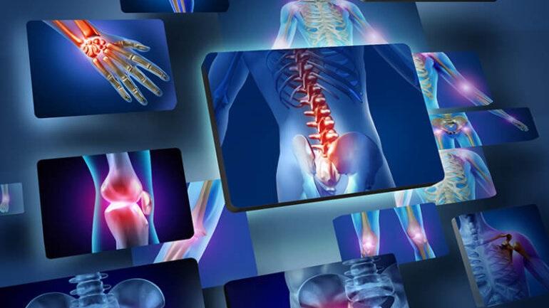 Ρευματικά νοσήματα: Πώς αντιμετωπίζονται αποτελεσματικά;