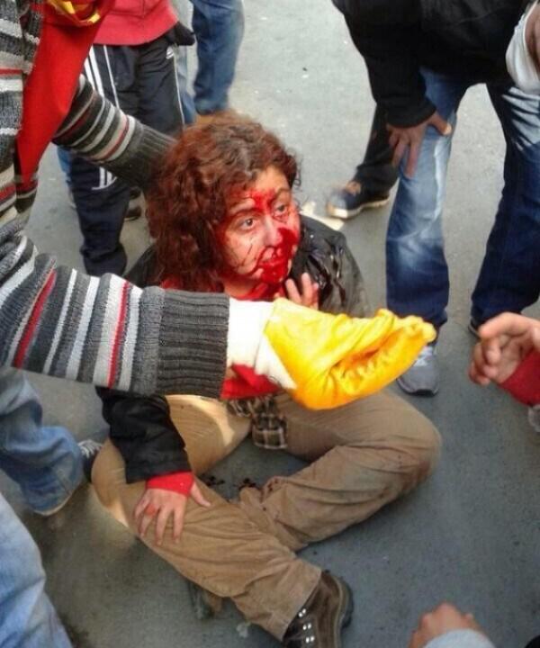 Διαδηλώτρια χτυπημένη στο πρόσωπο. Τα περισσότερα επεισόδια σημειώθηκαν στην Μπεσίκτας