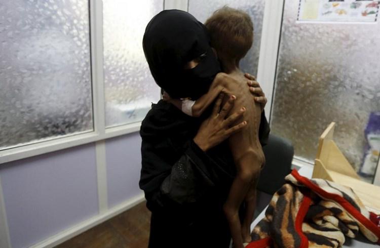 Ο ανήλικος Majed Ayyash που υποφέρει από υποσιτισμό στην αγκαλιά της μητέρας του σε Μονάδα Εντατικής Θεραπείας- Σαναά, 30 Ιουλίου/Khaled Abdullah