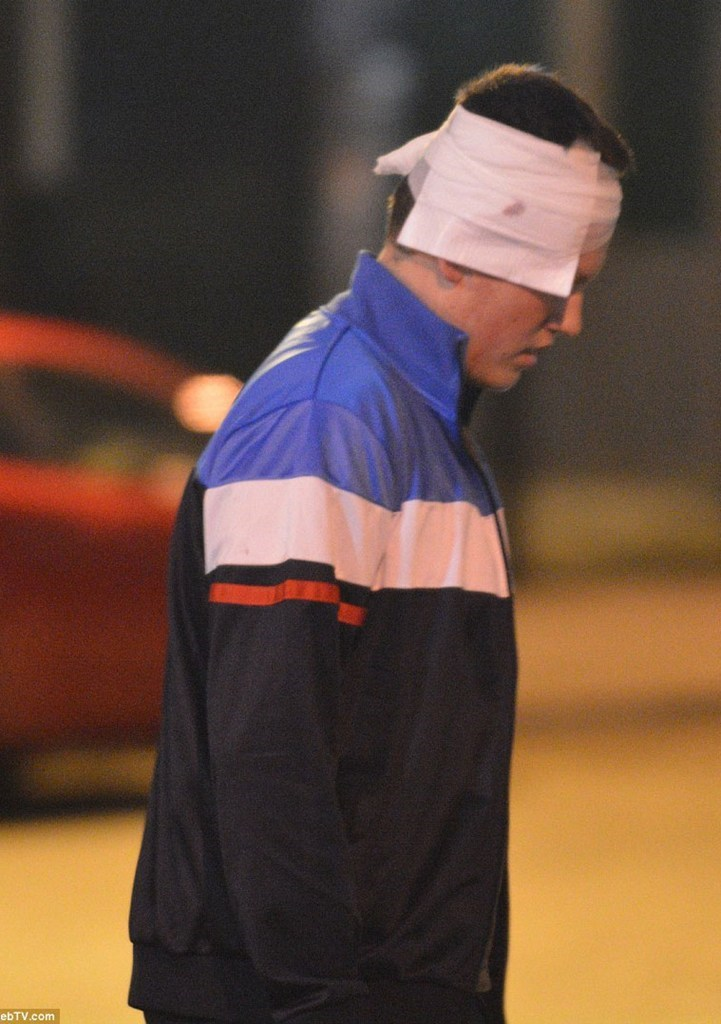 Ένας νεαρός άνδρας που έχει τραυματιστεί στο κεφάλι