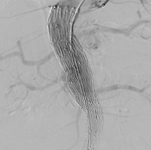 Διεγχειρητική τελική αγγειογραφία με τη «γεφύρωση» του θυριδωτού με το παλιό μόσχευμα και τα 4 σπλαχνικά αγγεία (κοιλιακή, άνω μεσεντέρια αρτηρία και τις 2 νεφρικές αρτηρίες).